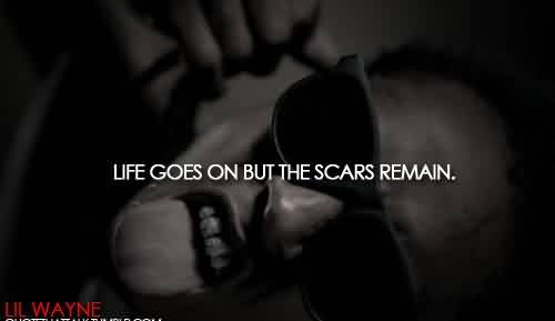Life Celebrity Quote by Lil Wayne~ Life goes on but the scars remain.